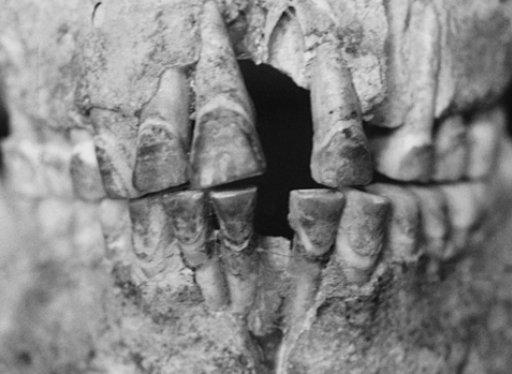 Dentizione di un uomo di 20-29 anni con i denti frontali colorati con la noce di areca, dal sito vietnamita di Nuip Nap (da Oxenham et al., 2002, fig. 1, p. 911)
