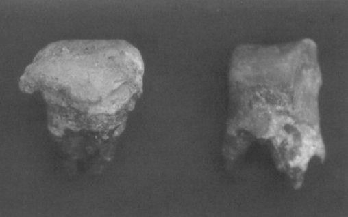 Due molari con evidenti calcoli causati probabilmente dal consumo di coca con la fonte basica (calce, ceneri). Sito di San Marco, Valle di Colonche, Ecuador, 1200-1532 d.C. (da Ubekaler & Stother, 2006, fig. 4, p. 82)