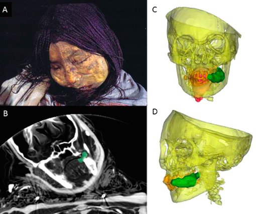 Studi radiografici eseguiti sulla mummia di Llulliaillaco che evidenziano il bolo di coca tenuto nella bocca (da Wilson et al., 2013, fig. 4, p. 13325)
