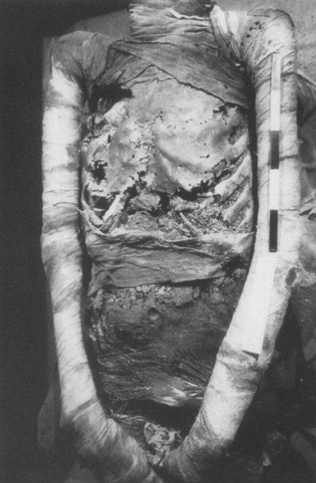 La mummia egizia del 950 a.C. analizzata dall'équipe della Balabanova (da Parsche & Nerlich, 1995, fig. 1, pp. 381)